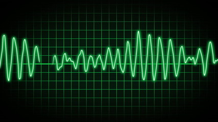 EKG Screen