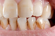 Zahnbelag, Verfärbungen (makro, Unterkiefer scharf)