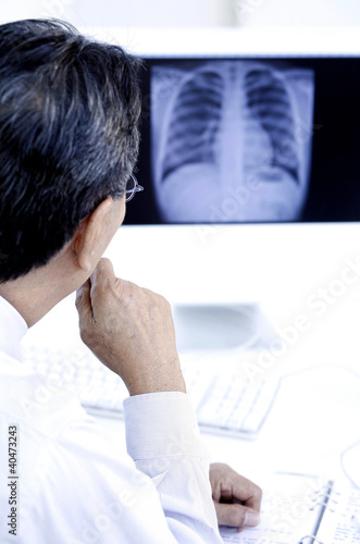 Doctor studying an x-ray picture