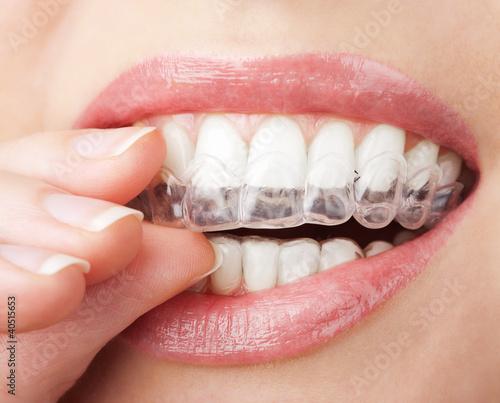 Leinwanddruck Bild teeth with whitening tray