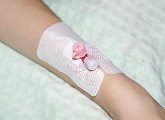 Катетер на руке у больного