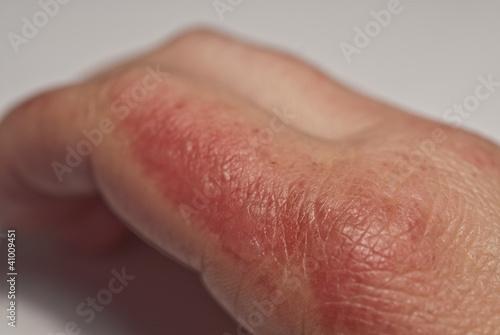 Verbrannte Finger