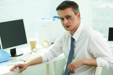 Businessman with bruise