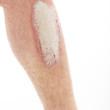 Schuppenflechte oder Psoriasis am Unterschenkel - Nahaufnahme