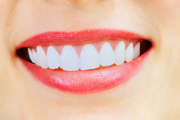Smiling woman with great healthy white teeth