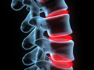 Wirbel detail xray spine