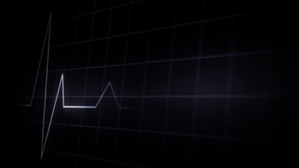 close up of a looping EKG display