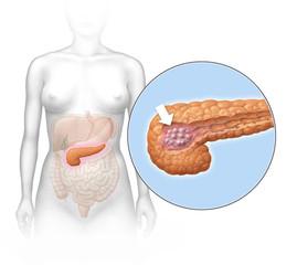 Frau mit Pankreastumor