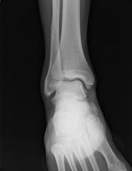 Radiografia piede