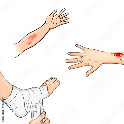 first aid injuries illustration