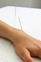 Acupuncture needles in hand