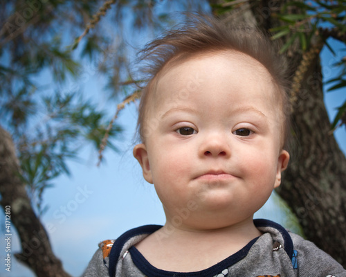 Portrait of baby boy with Down Syndrome
