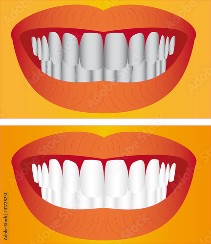 Beautiful young woman teeth before and after whitening.
