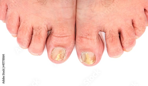 Toenails infected with fungus