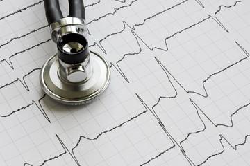A Stethoscope on EKG ekstrasistoly