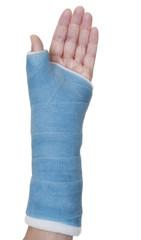 Hand wrist thumb in blue cast