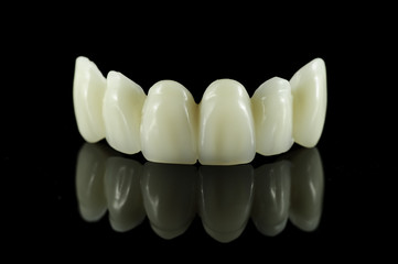 Dental tooth bridge
