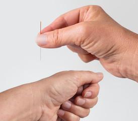 Hand hält Akupunkturnadel