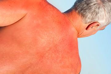Quemadura en la espalda