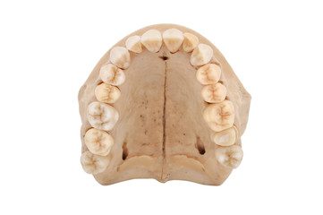 upper jawbone