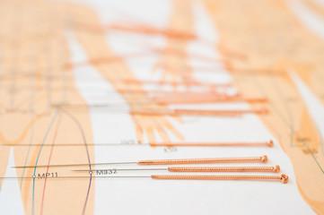 Akupunkturnadeln und Meridianpunkte