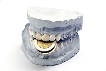 Zähne kosten Geld
