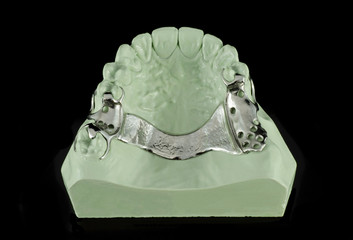 Dental Metal Framework on a Model
