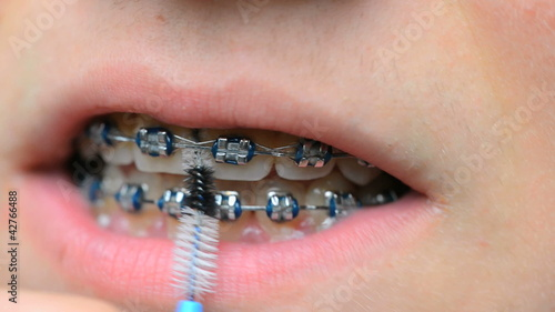 teeth cleaning with braces