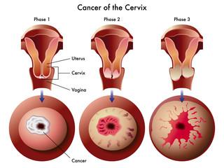 Carcinoma cervicale