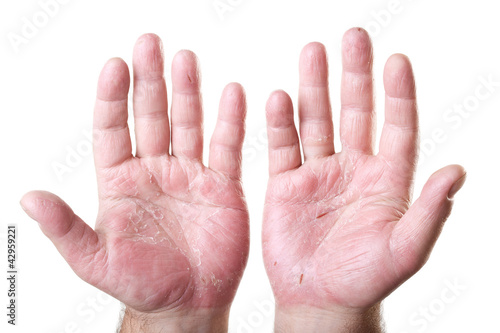 two male palms with eczema isolated on white background