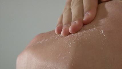 Boy peeling skin