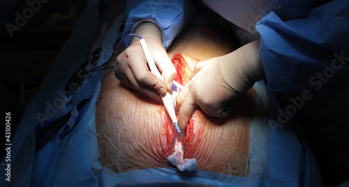 Sternotomy. Treatment of the wound edges.