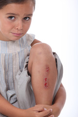 Girl with a grazed leg