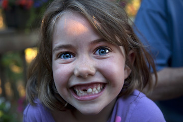 Smiling Caucasian girl with tooth missing