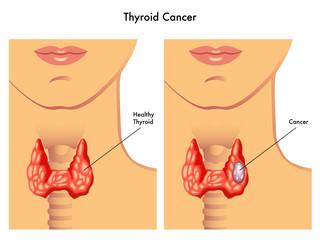 carcinoma tiroideo