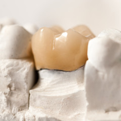 Zirconia Crown, Molar
