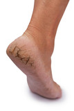 chapped heel poster