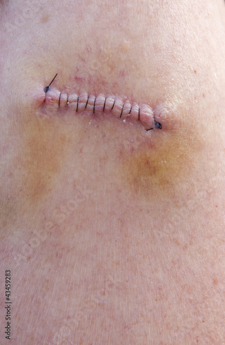 Stitches After Skin Cancer Removal