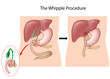 The Whipple Procedure, eps10