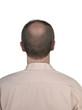 Human hair loss