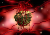 Tumor mit Blutgefäßen poster
