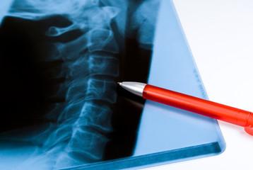 Röntgenbild Wirbelsäule
