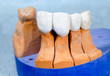 dental bridge with applied ceramic material