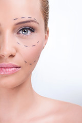 Marking for cosmetic plastic surgery
