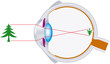 Vision, Optics, Eyeball (Sehen, Optik, Augapfel)