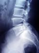 Röntgenbild Lendenwirbelsäule - Becken
