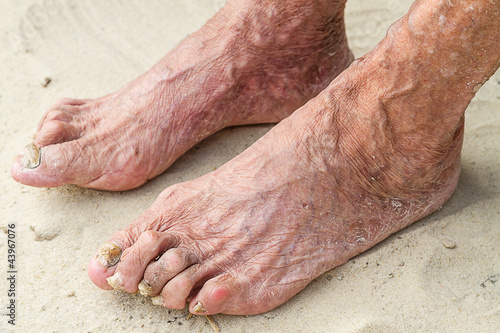 Patients legs of an old woman