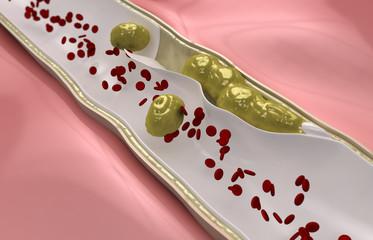 Coronary embolus travels through the circulatory system