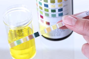 Bandelette urinaire - Diagnostic