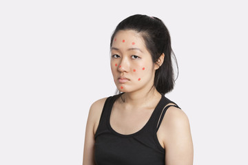 Portrait of an young woman suffering from measles